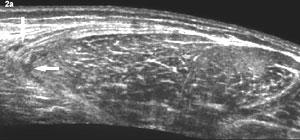 rotura fibrilar cuadriceps