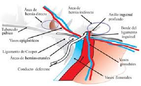 sport hernia1